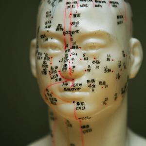 acupunture_head-300x300